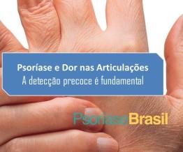 post artrite psoriásica